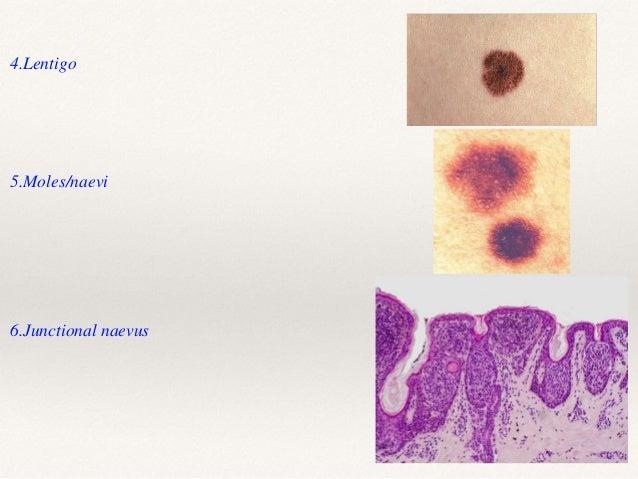 Premalignant lesions 1.Actinic/solar keratosis 3.Keratoacanthoma 4.Bowen's disease . 2.Cutaneous horn