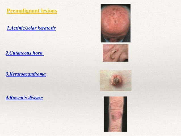 CONGENITAL/ GENETIC SYNDROMES Naevoid basal cell carcinoma (Gorlin's) syndrome Xeroderma pigmentosum .
