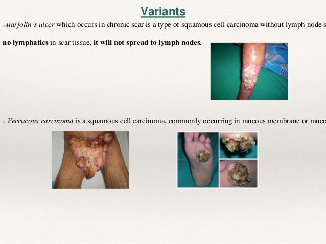 MOHS (Microscopically Oriented Histographic Surgery)