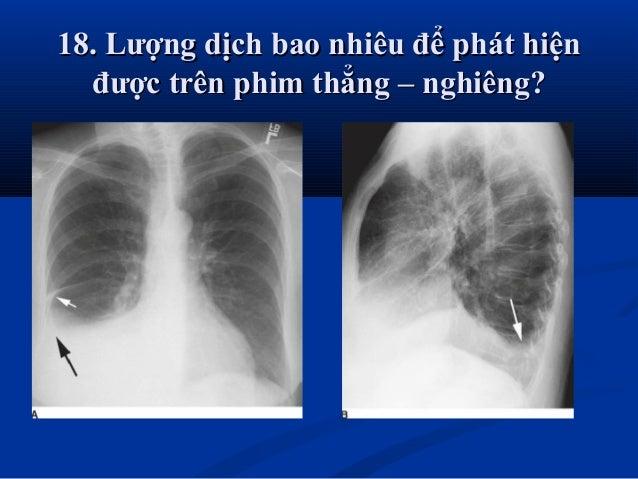  BS Hồ Hoàng Phương.BS Hồ Hoàng Phương.  Tel: 0983122377Tel: 0983122377  Mail & fb: michelphuong@yahoo.comMail & fb: mi...