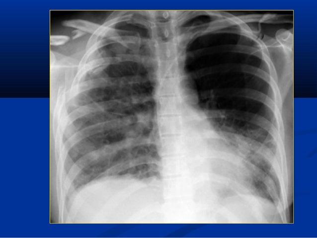 HỘI CHỨNG MÀNG PHỔIHỘI CHỨNG MÀNG PHỔI  ĐN: bất thường màng phổi, khoang màng phổiĐN: bất thường màng phổi, khoang màng p...