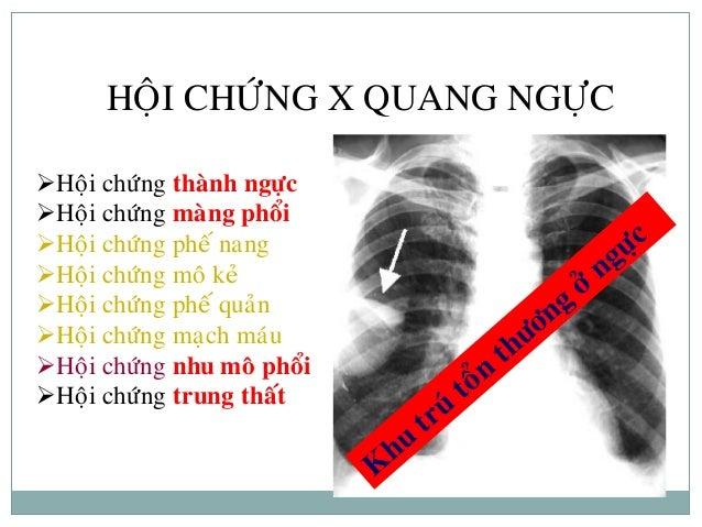 HỘI CHỨNG X-QUANG PHỔI Slide 2