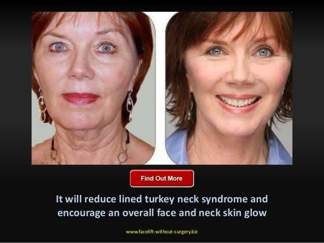 How to reduce turkey neck