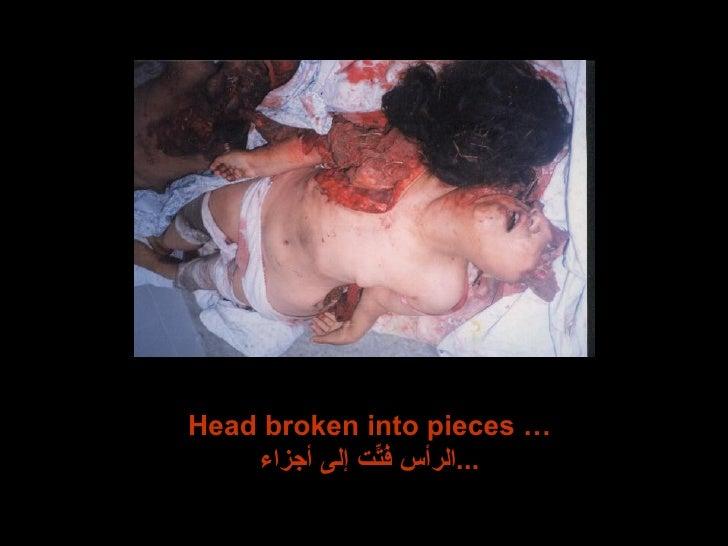 Head broken into pieces … الرأس فُتِّت إلى أجزاء ...
