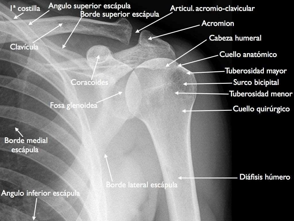 Hombro y clavícula. Anatomía. Radiología.