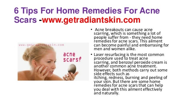 6 Tips For Home Remedies For Acne Scars -www.getradiantskin.com • Acne breakouts can cause acne scarring, which is somethi...