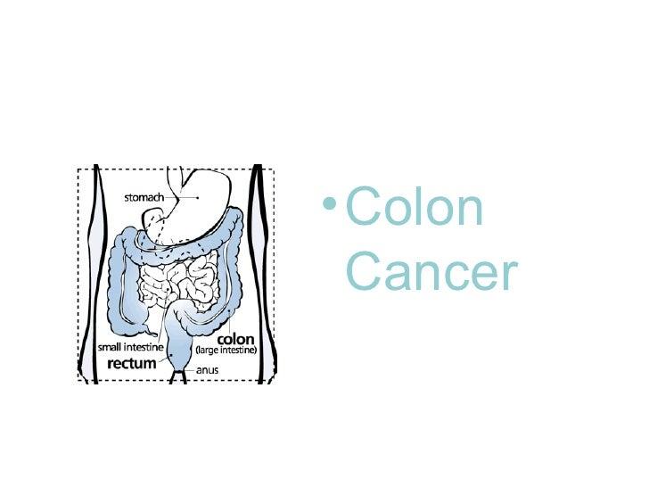 • Colon   Cancer