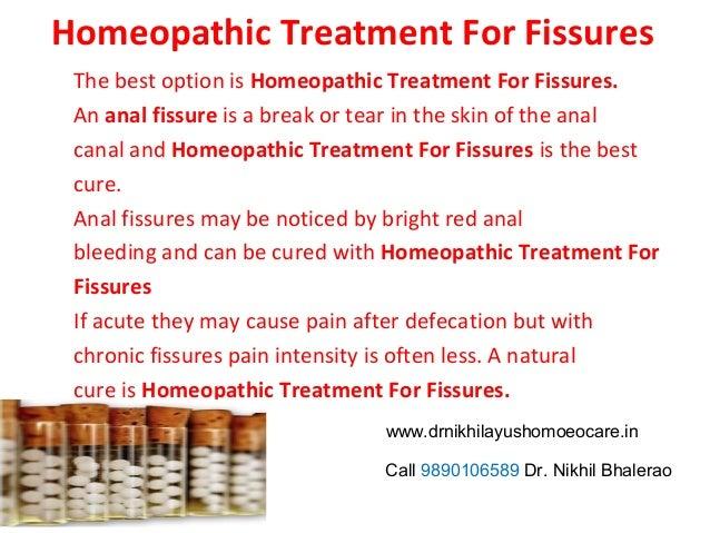 Chronic anal fissure treatment