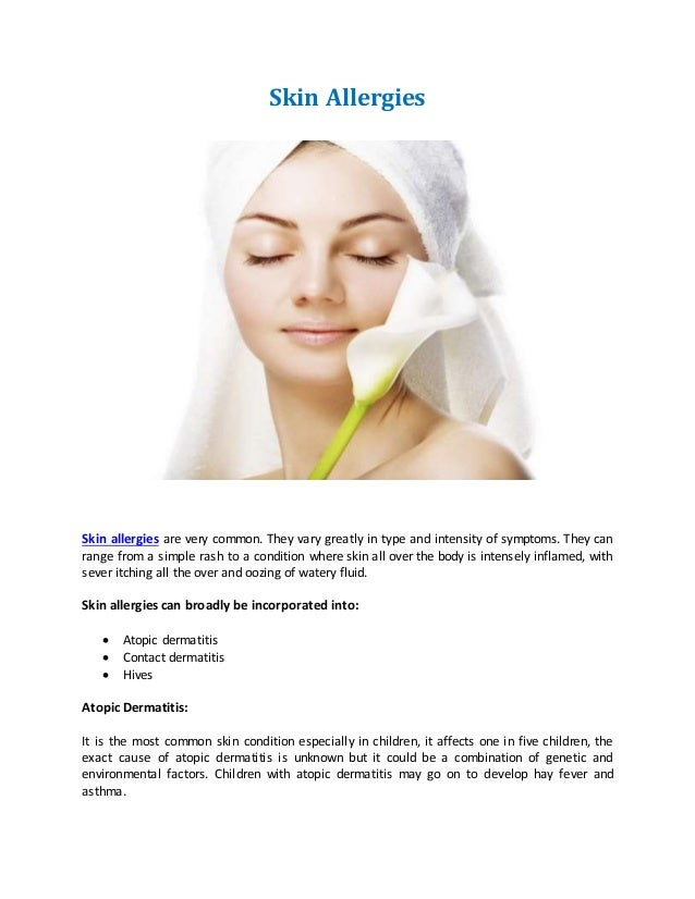 Homeopathy Treatment for skin allergies