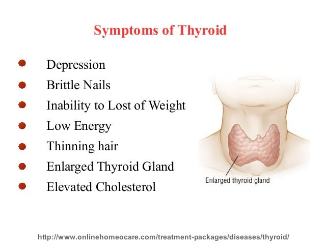 homeopathy medicine for thyroid problems, Skeleton