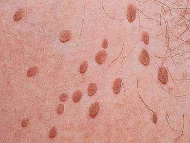 Best Natural Genital Warts Treatment