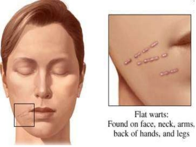 Treatment for facial warts