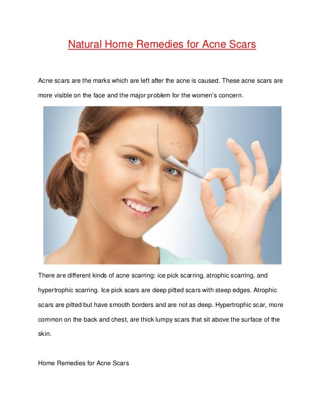 Home Remedies For Acne Natural Acne Treatment