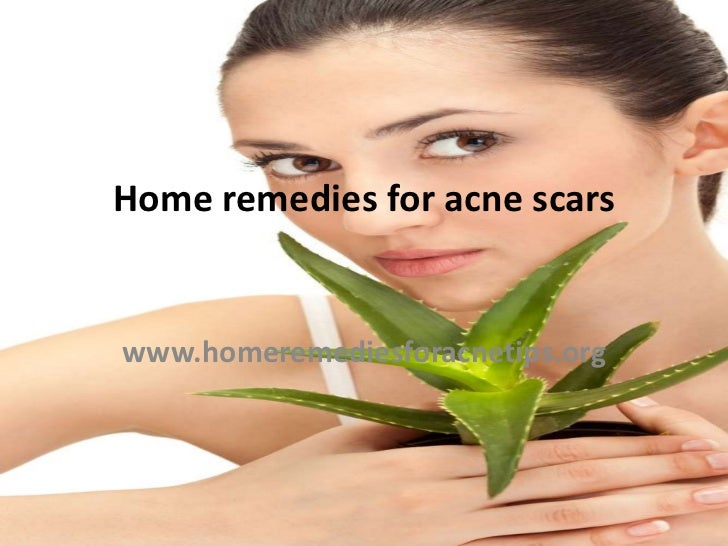 Home remedies for acne scarswww.homeremediesforacnetips.org
