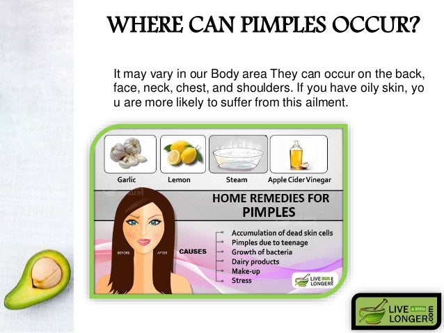Home Remedies For Pimples N Oily Skin