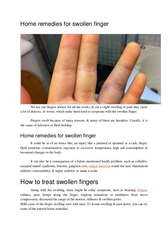 home remedies for swollen finger
