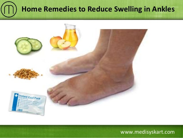 Home Remedies to Reduce Swelling in Ankles