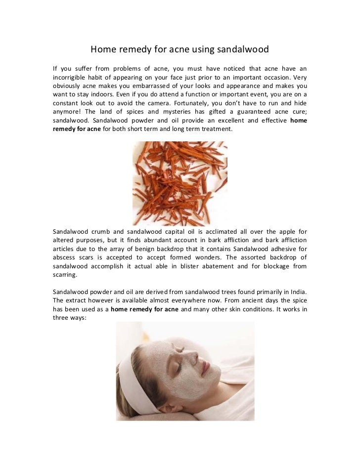 Home remedy for acne using sandalwoodIf you suffer from problems of acne, you must have noticed that acne have anincorrigi...