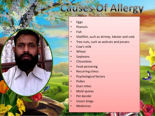 Home remedy for allergy for Fish allergy home remedy