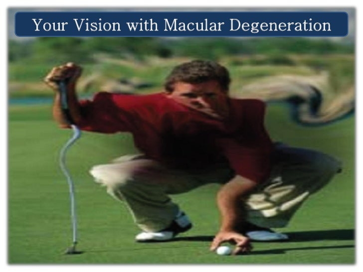 Your Vision with Macular Degeneration