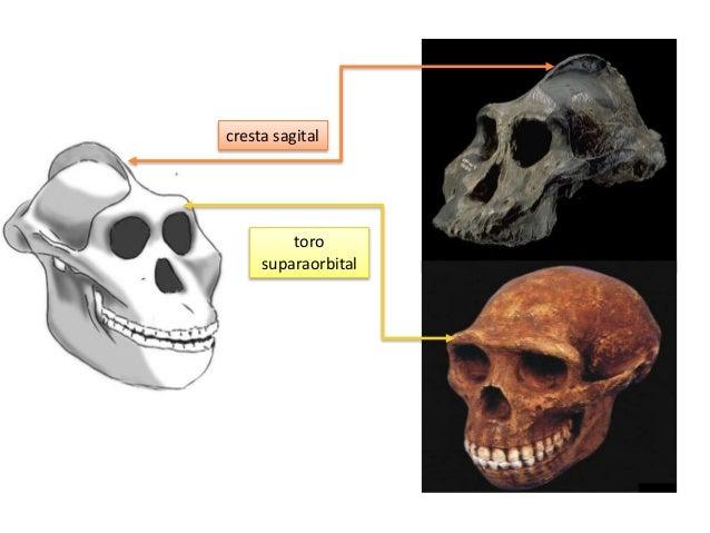 El aumento del tamaño del cráneo también tuvo alguna desventaja, como la salida del feto a través del canal del parto. Un ...