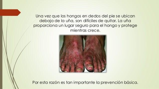 Los métodos públicos del hongo de las uñas de los pies