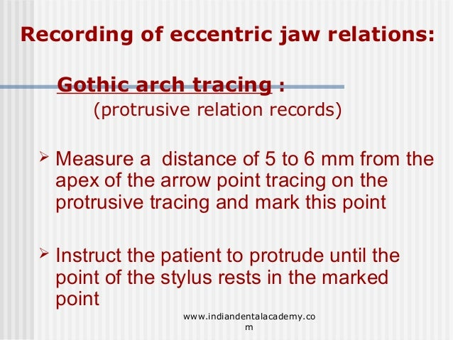 57 Recording Of Eccentric Jaw Relations Gothic Arch