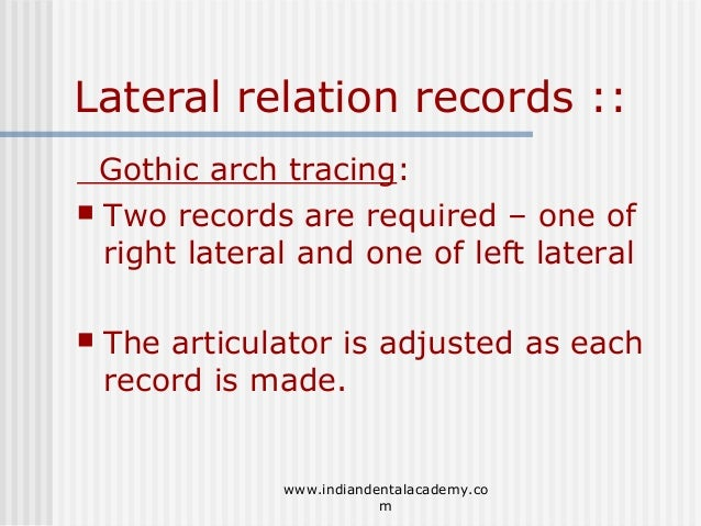 60 Lateral Relation Records Gothic Arch