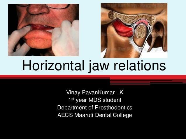 Horizontal jaw relations Vinay PavanKumar . K 1st year MDS student Department of Prosthodontics AECS Maaruti Dental College