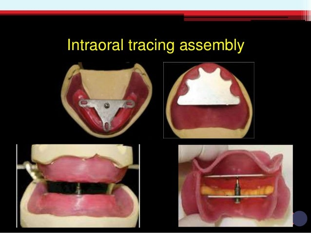 Extraoral Tracing Hight Device