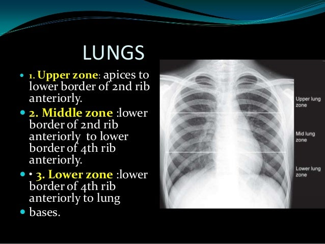 Pleural effusion; 39.  sc 1 st  SlideShare & How to read normal x ray