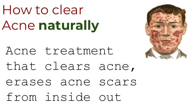 How to clear Acne naturally Acne treatment that clears acne, erases acne scars from inside out