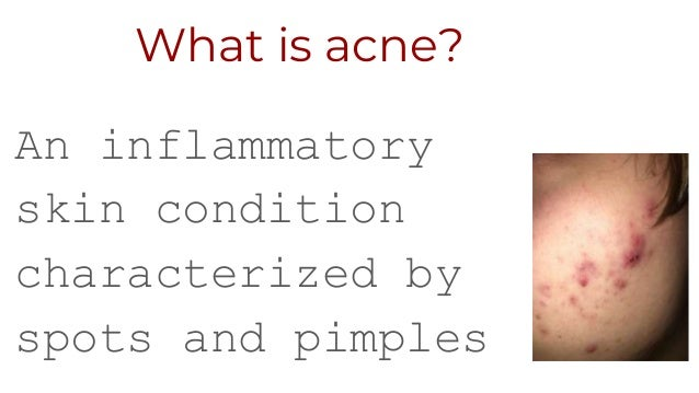How to-clear-acne-naturally Slide 2