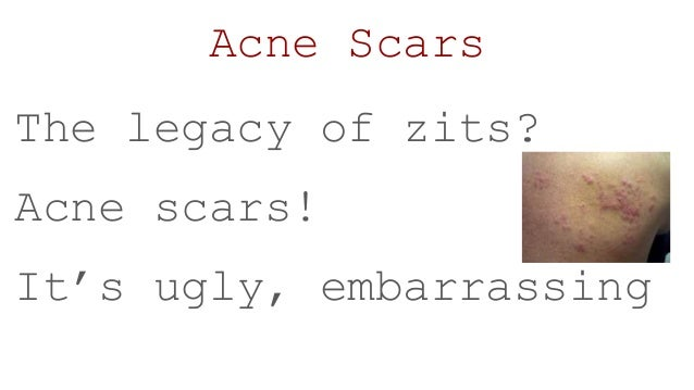 How to-clear-acne-naturally Slide 3