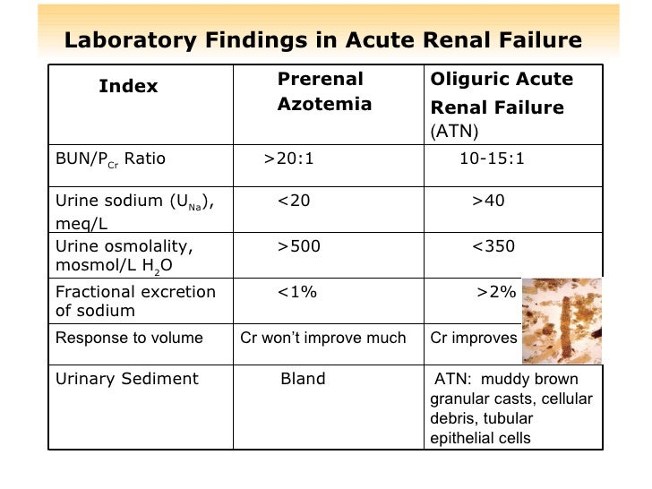 causes of acute renal failure pdf