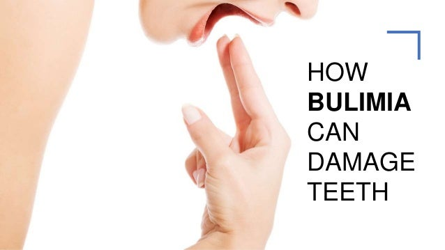 HOW BULIMIA CAN DAMAGE TEETH