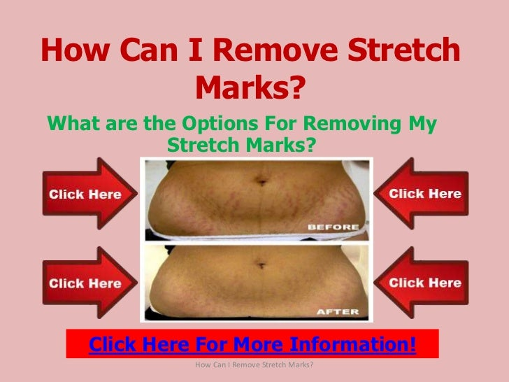 How can i remove stretch marks