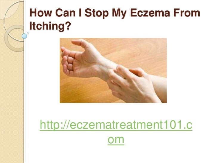 Natural Remedies To Stop Itching From Eczema