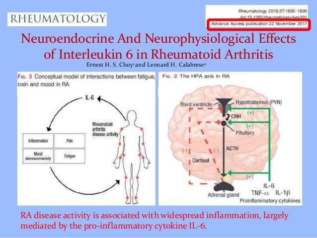How chronic inflammation in rheumatoid arthritis affects brain pre