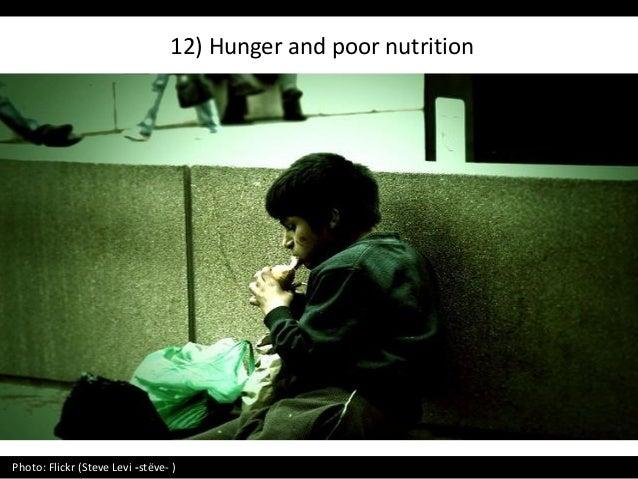 12) Hunger and poor nutrition Photo: Flickr (Steve Levi -stëve- )