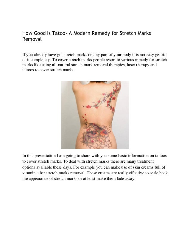 How Good Is Tatoo- A Modern Remedy for Stretch Marks Removal If you already have got stretch marks on any part of your bod...