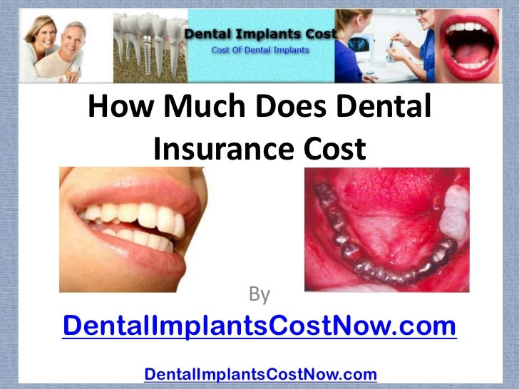 How Much Does Dental    Insurance Cost                ByDentalImplantsCostNow.com     DentalImplantsCostNow.com
