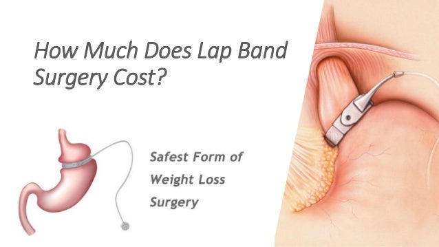 Much Does Lap Band Surgery Cost?