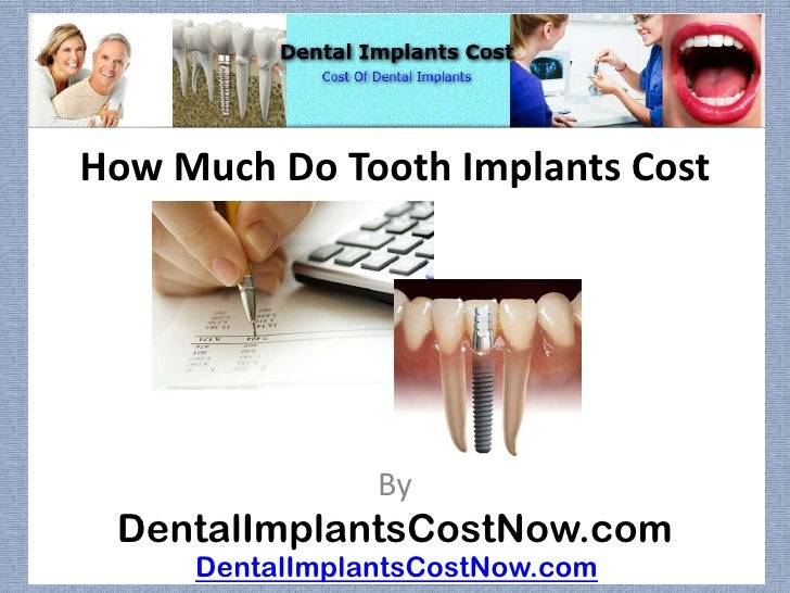 How Much Do Tooth Implants Cost                By DentalImplantsCostNow.com     DentalImplantsCostNow.com