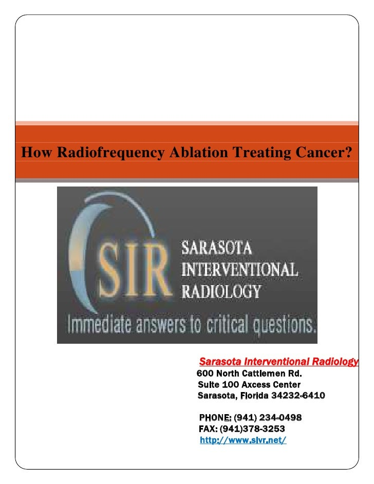 How Radiofrequency Ablation Treating Cancer?Sarasota Interventional Radiology                                             ...