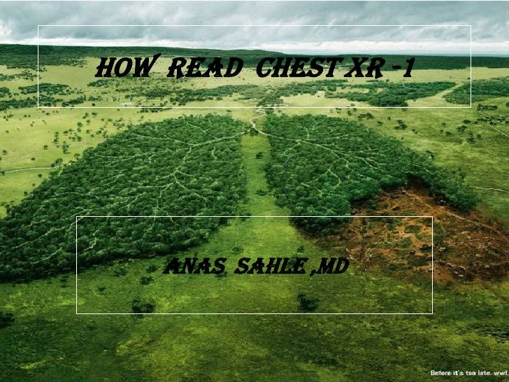 HOW READ CHEST XR -1    ANAS SAHLE ,MD