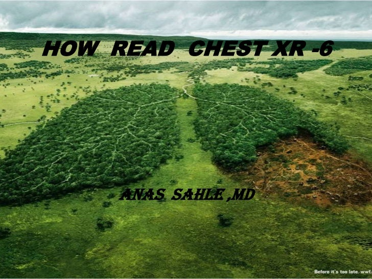 HOW READ CHEST XR -6     ANAS SAHLE ,MD