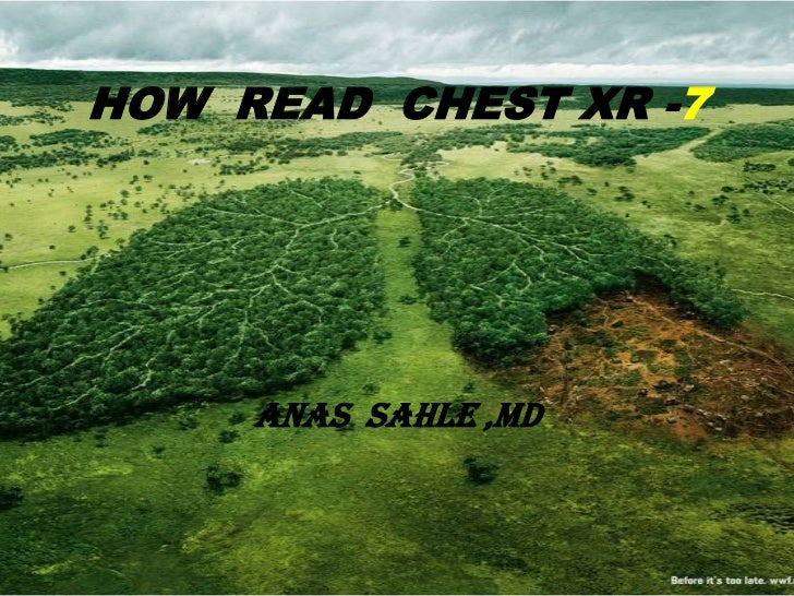 HOW READ CHEST XR -7     ANAS SAHLE ,MD
