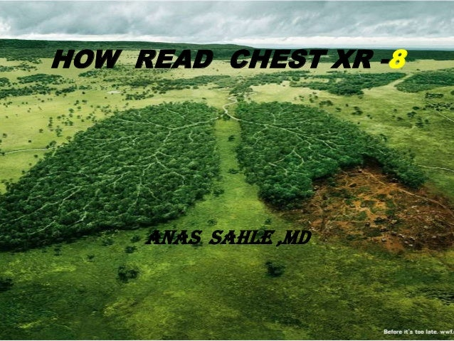 HOW READ CHEST XR -8     ANAS SAHLE ,MD