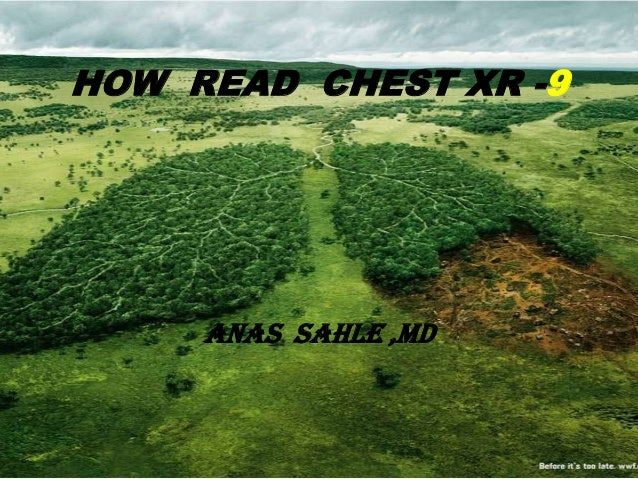 HOW READ CHEST XR -9     ANAS SAHLE ,MD